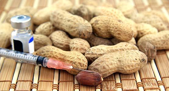 peanut-food-allgery