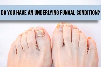 fungal-condition