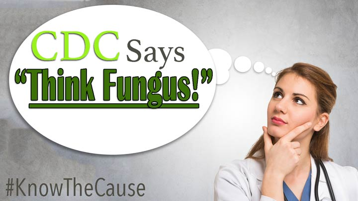 cdc-think-fungus-fungal-disease-awareness