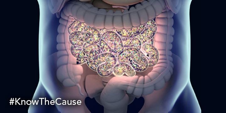 Candida Leaky Gut Syndrome